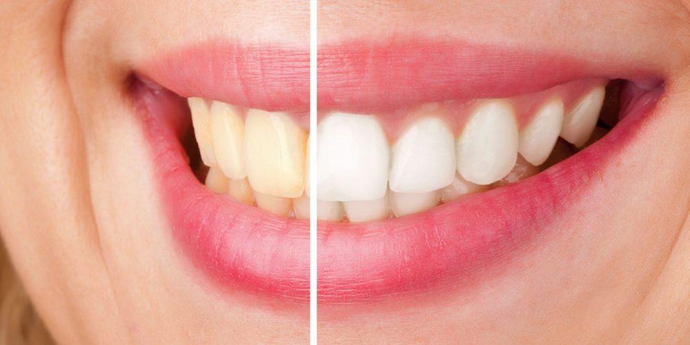 sbiancante per denti naturale
